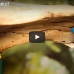 Travagem: entenda como tratar a inflamação do palato
